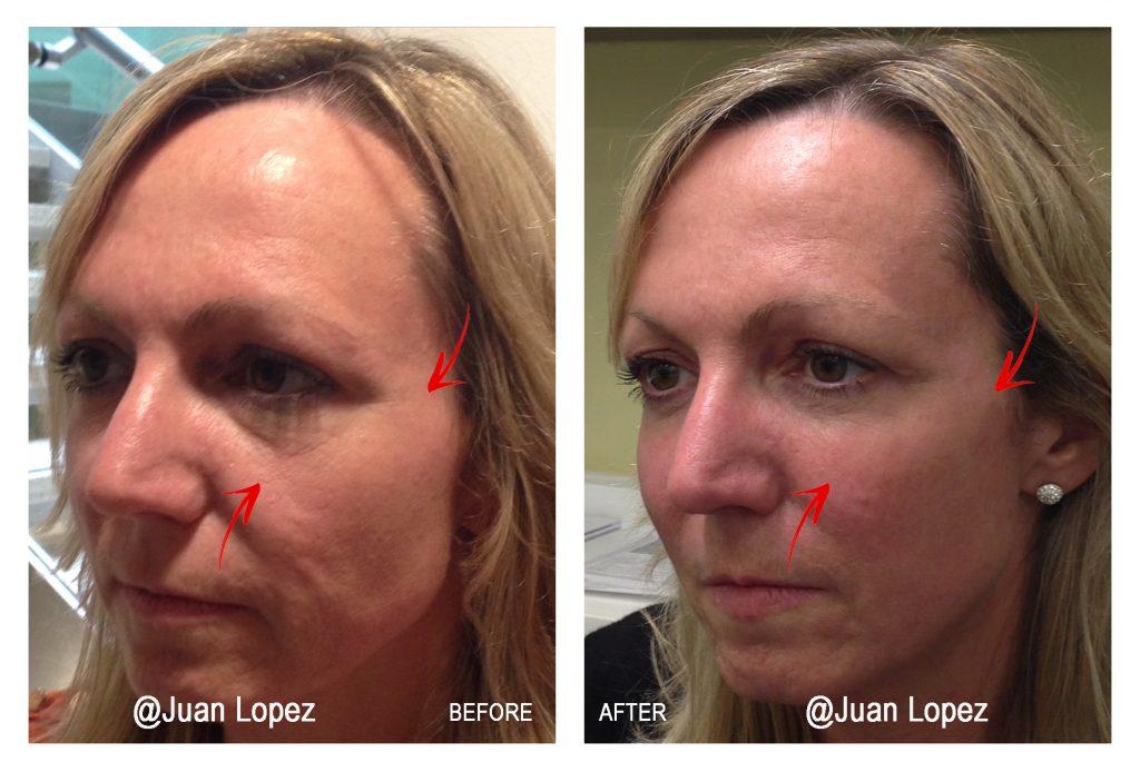 Cheek Enhancement with Hyaluronic Acid