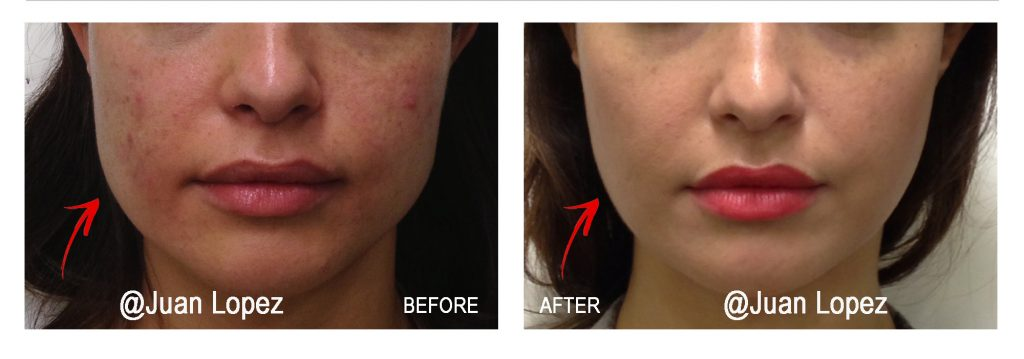 Masseter Reduction with Botox - Bruxism Treatment - TMJ Treatment