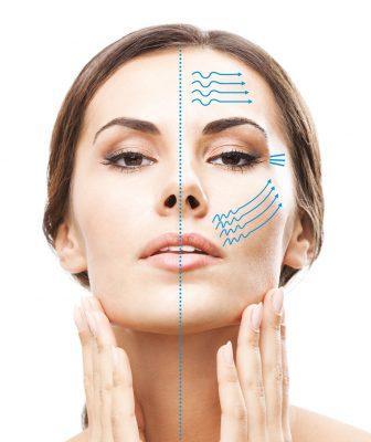 SkinMedico - HIFU